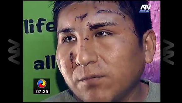 José Antonio Alanoca Mamani quedó desfigurado al intentar evitar que su pasajera de ser violada. (Captura de video)