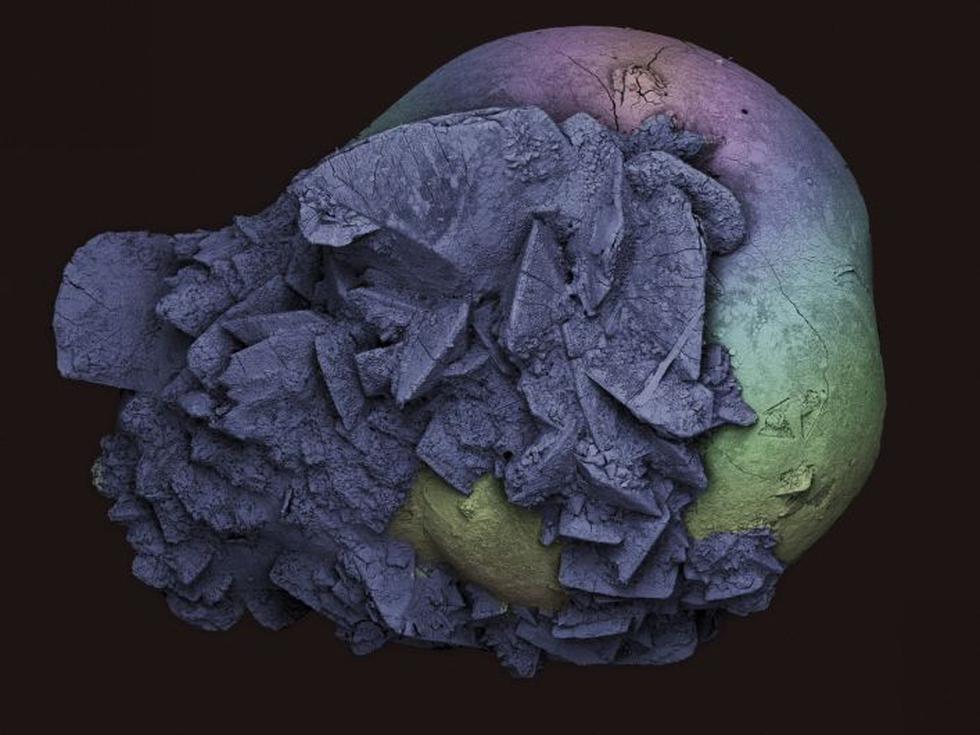 Aunque los colores son artificiales, permiten observar con detalle la aglomeración de sales y minerales de la orina que forman la piedra. (Kevin Mackenzie)