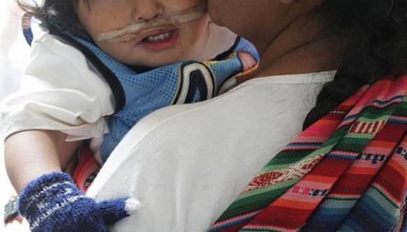 Realizarán gran campaña gratuita para operar  a niños con labio leporino y paladar hendido.
