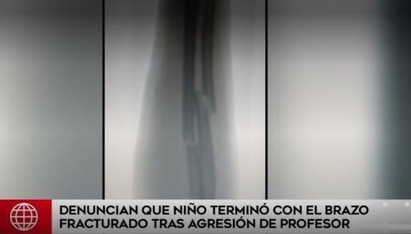 Radiografía muestra la fractura en el brazo del menor. (Foto: Captura)