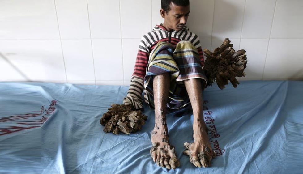 Bangladesh: El 'hombre-árbol' fue 'podado' y ahora luce así. (EFE)