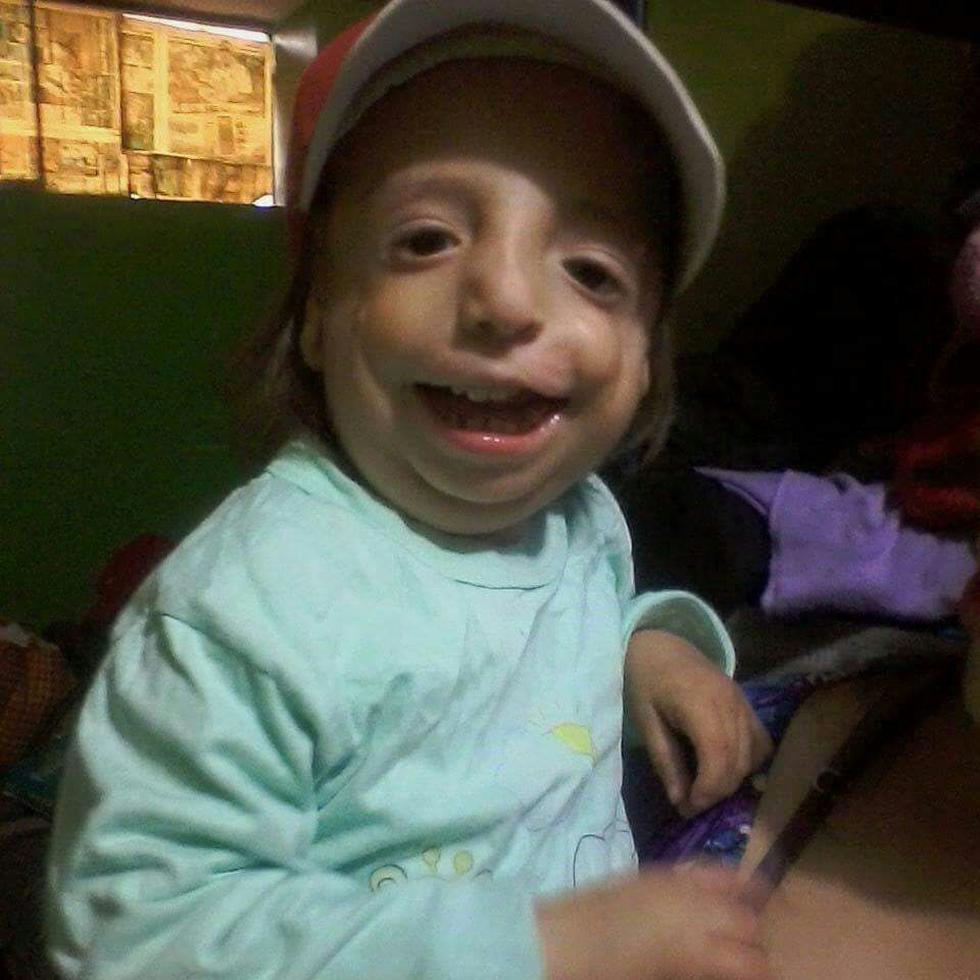 Benji tiene cinco años y nació con Síndrome Treacher Collins.