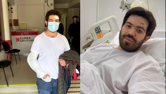 Lucas Ghersi será operado tras accidente.