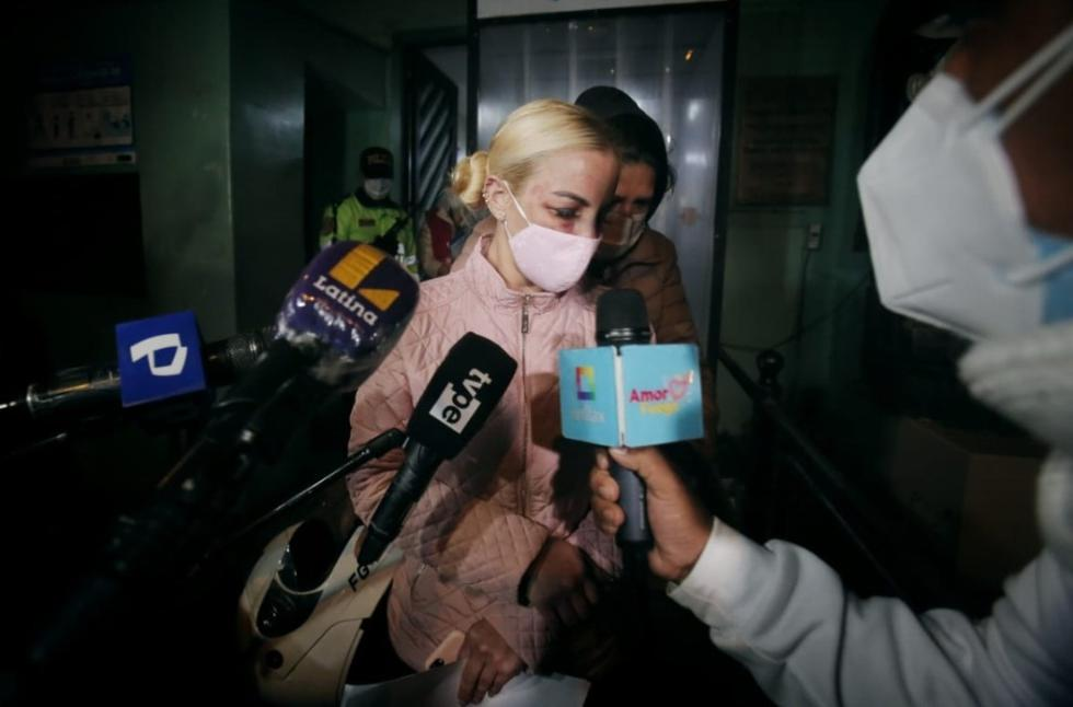 Según informó el programa 'Magaly TV: La Firme', el cantante John Kelvin fue denunciado por agredir físicamente a su aún esposa, la cubana Dalia Durán, y ambos terminaron en la comisaría.