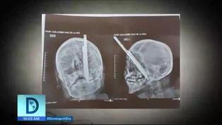 Extraen exitosamente cuchillo de la cabeza de un hombre víctima de la delincuencia