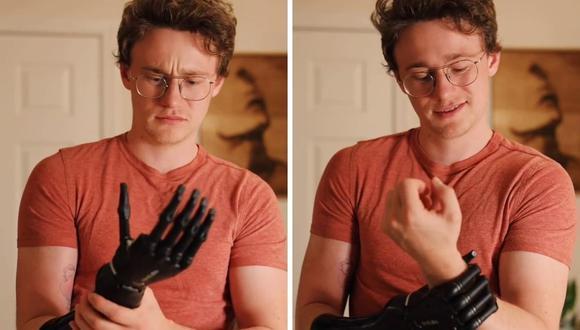 Henrik Cox recibió una mano biónica cuando tenía 16 años. (Foto: @henrikcox | TikTok)