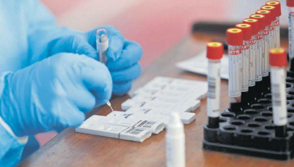 Prueba de fuego. Susalud realiza una investigación sobre el presunto cobro de clínicas por las muestras procesadas en el INS.