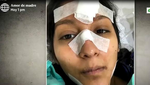 Ciclista narró, a través de redes sociales, el accidente ocurrido el último miércoles en la ciclovía de la Costa Verde. (Captura: América Noticias)
