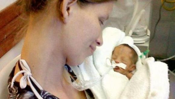 La bebé tenía cinco meses de gestación cuando nació en abril pasado. (Internet)