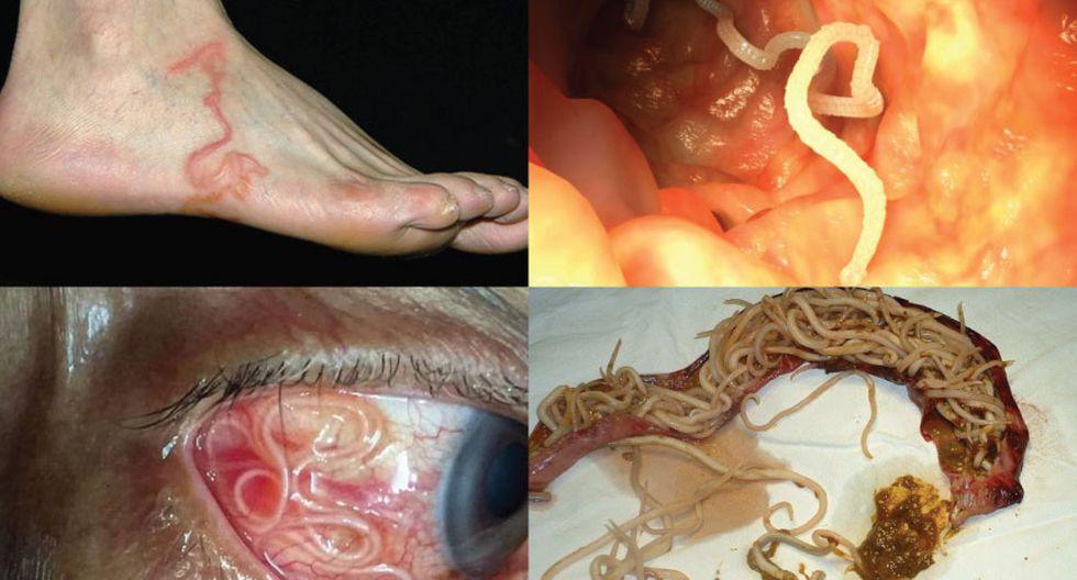 síntomas de un parásito en sus intestinos