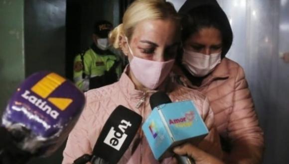 Así fue la salida de la cantante cubana Dalia Duran de la comisaría de San Miguel, quien fue golpeada por su esposo John Kelvin, el mismo que sigue detenido.