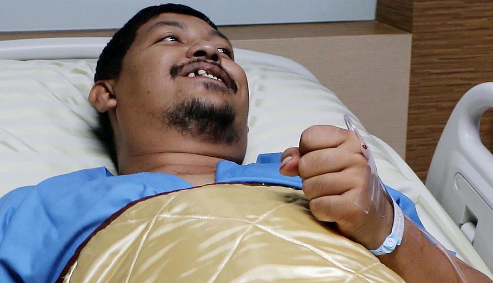 Tailandia: Hombre sobrevivió a mordedura de serpiente en sus genitales. (AP)