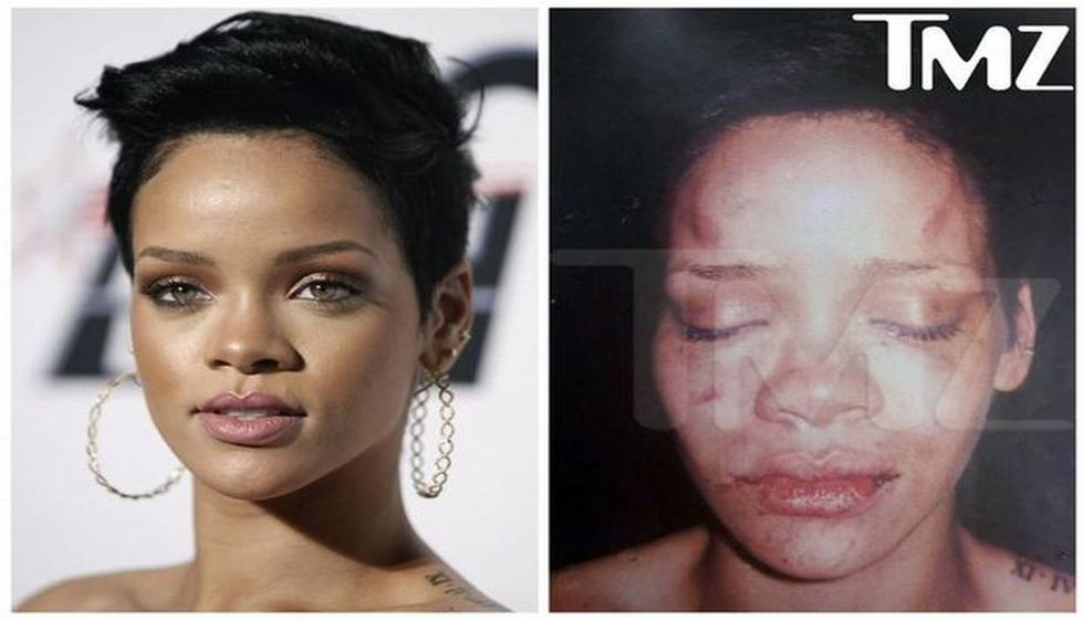En 2009, Rihanna fue golpeada por Chris Brown, su ex novio. El incidente ocurrió cuando la cantante le hizo una escena de celos a Brown antes de ir a los premios Grammy. (dailyrecord.co.uk)
