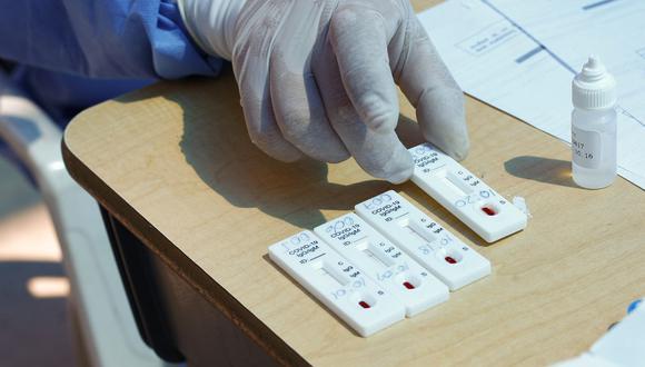 Foto referencial. Las prioridades de financiamiento estarán dirigidas al escalamiento de Kits de diagnóstico para la COVID-19.(Carlos MAMANI / AFP)