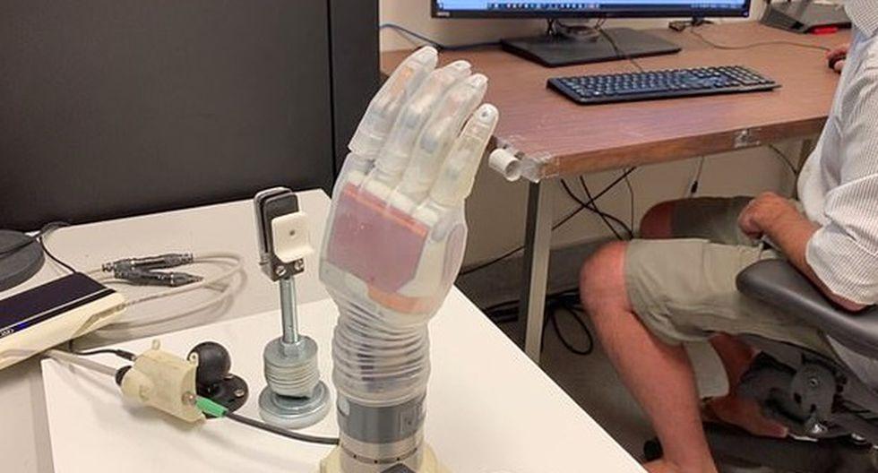 """El brazo """"Luke"""" está hecho de motores de metal y de una """"piel"""" de silicona transparente y se alimenta por una batería externa. (Foto: Universidad de Utah)"""