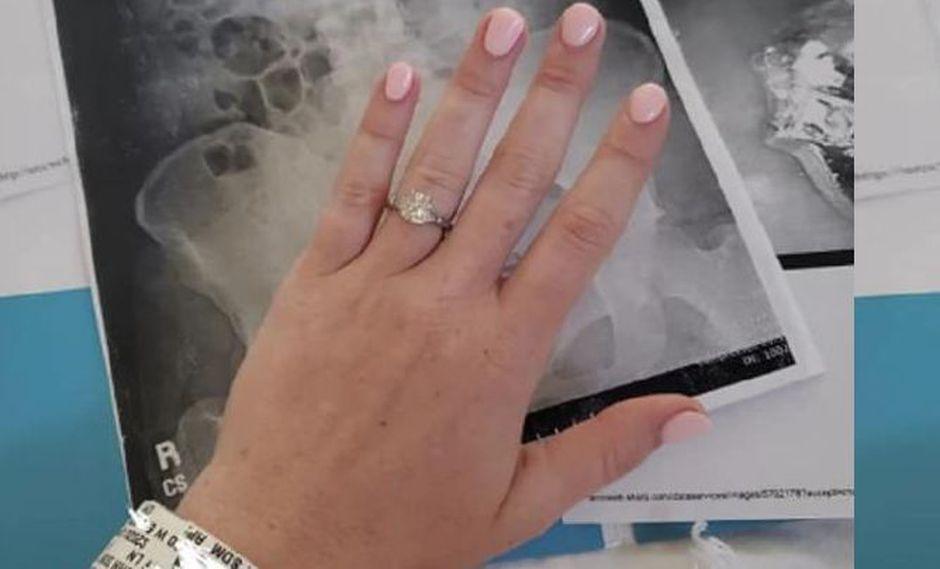Mujer se tragó su anillo de compromiso mientras soñaba. (Facebook)