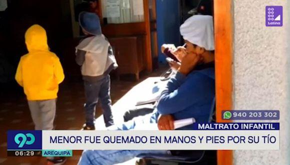 La abuela de este pequeño declaró para 'Latina', que el tío del pequeño quemó con fósforos las manos y pies del menor. (Foto: Captura 'Latina')