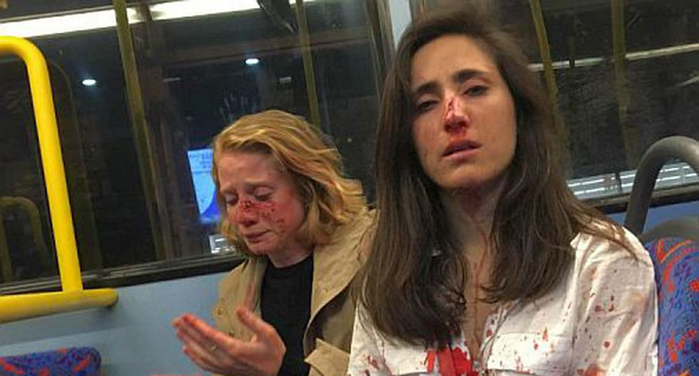 El ataque a Melania Geymonat y su pareja Chris fue condenado por las autoridades británicas. (Foto: Facebook)<br>