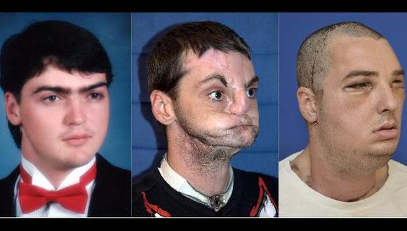 La operación para reconstruir rostro de Norris duró 36 horas. (Reuters)