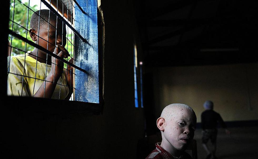 En Tanzania, los albinos son asesinados por chamanes que usan sus cadáveres para rituales de magia negra. (AFP)