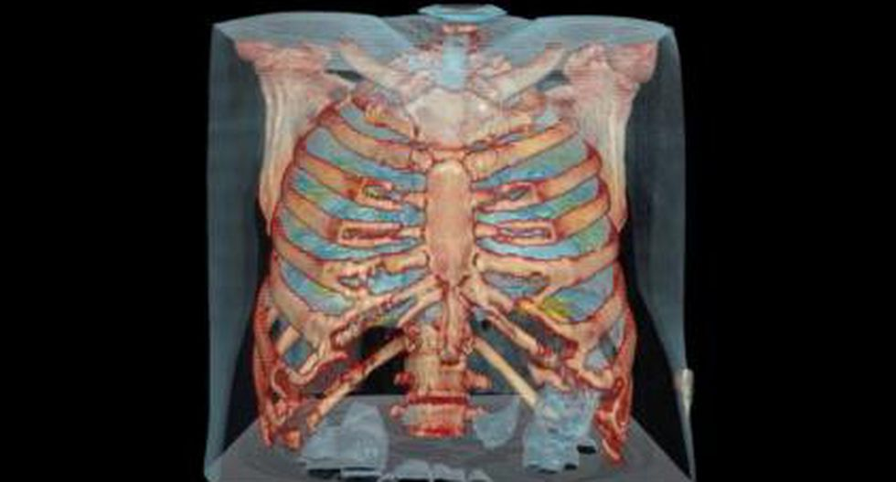 Médicos del Hospital Universitario George Washington utilizaron video de realidad virtual para observar el daño que causa el coronavirus en los pulmones. (Foto: Captura de video)