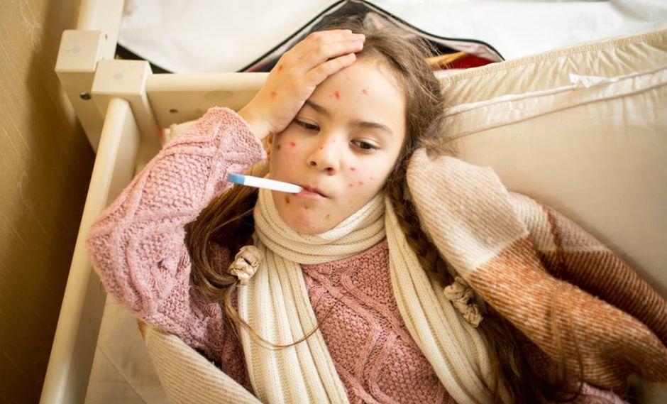 Salud21: Contagio de la varicela aumenta en primavera. (Foto: Shutterstock)