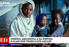 Nigeria: hombre abandonó a su esposa e hijas porque tienen ojos azules