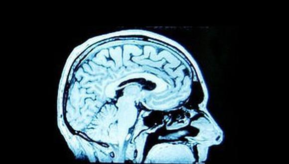 El individuo debe usar regiones del cerebro para seleccionar un lenguaje. (BBC)
