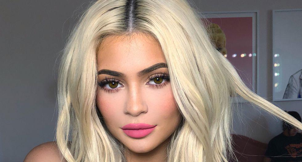 Kylie Jenner volvió a aplicarse ácido hialurónico para lucir unos labios voluminosos.