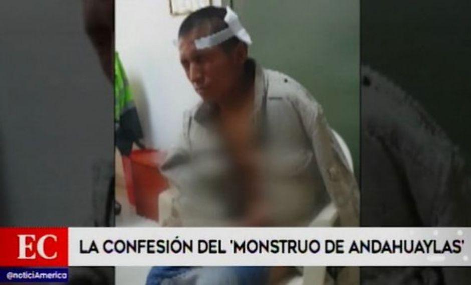 Se evalúa la adopción de otras medidas contra el detenido. (Foto: Captura América Noticias)