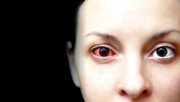 La exposición de las personas a las pantallas digitales por largas horas podría afectar la salud visual. (Foto: iStock)