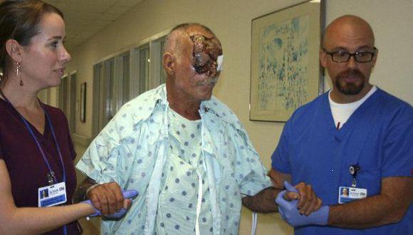 Poppo podría quedarse temporalmente ciego. (Reuters)
