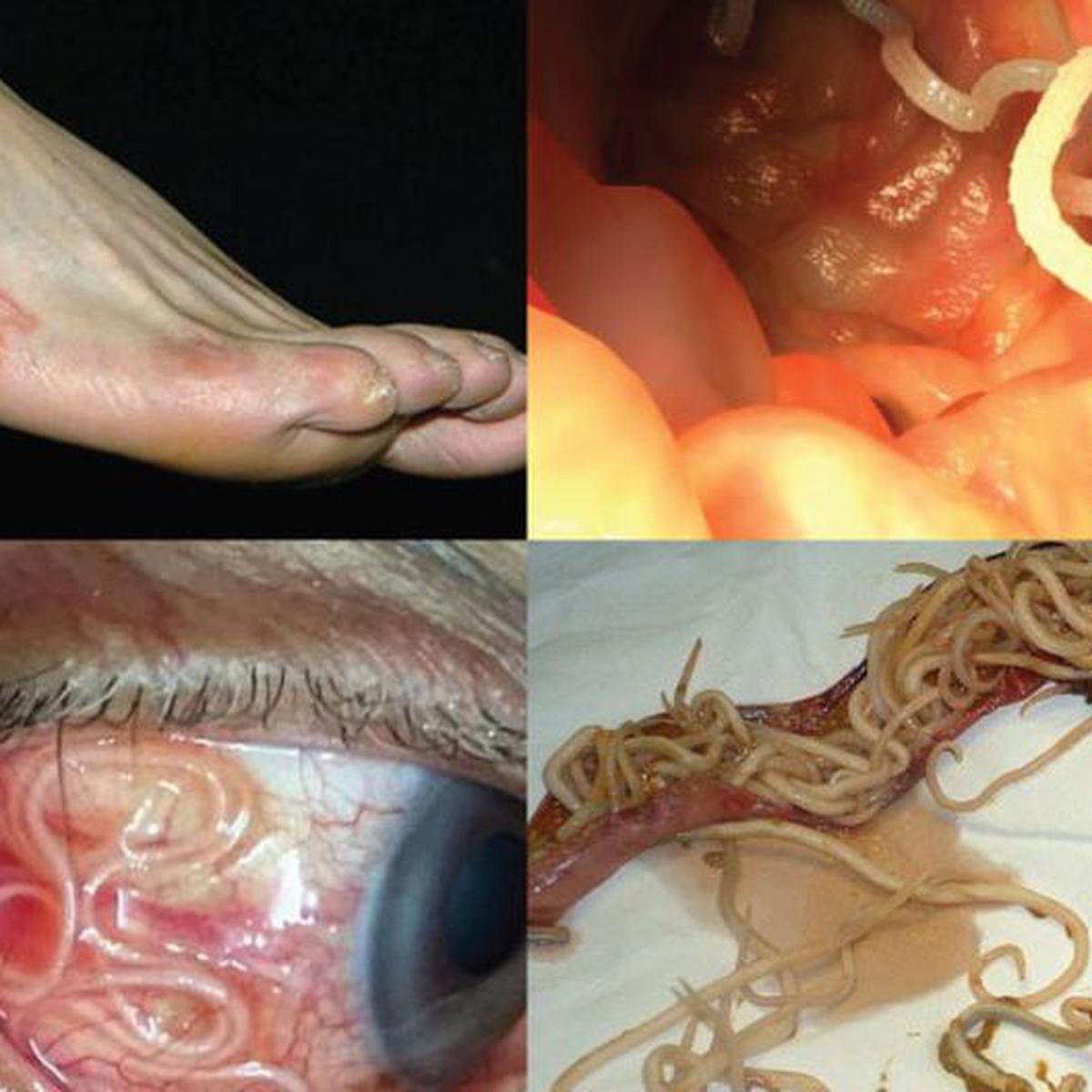 Cuidado Estos Son 10 Aterradores Parásitos Que Pueden Invadir Tu Cuerpo Fotos Ciencia Peru21
