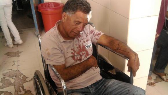 Ataque brutal. Moncada terminó con varios golpes y cortes. (Juan Mendoza)