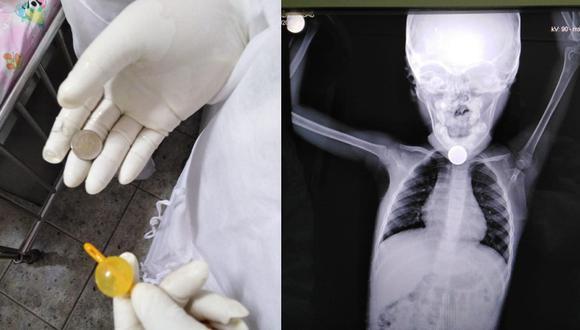 Piura: Médicos del hospital Santa Rosa logran salvarle la vida a una niña de 3 años que se tragó una moneda de 50 céntimos. (Foto Hospital Santa Rosa)
