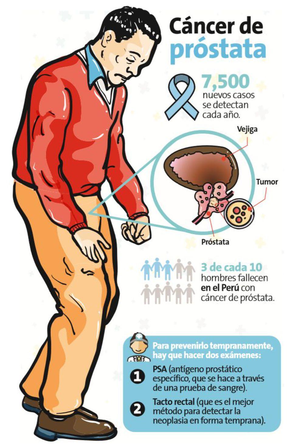 esto es lo que causa el cáncer de próstata