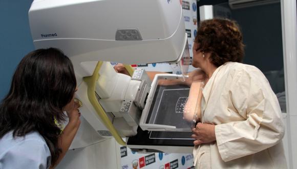 La mamografía es una prueba indispensable. (USI)