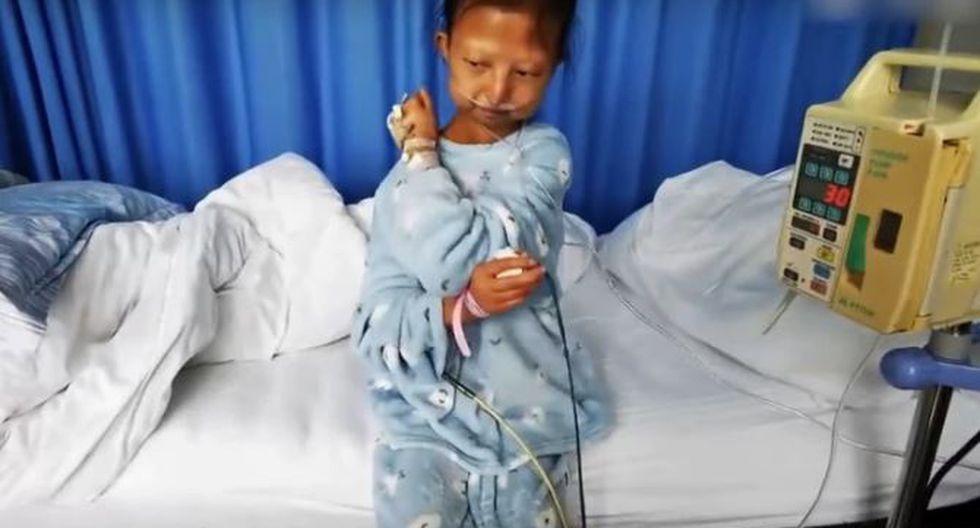 La muchacha de 24 años se hizo viral el año pasado debido a la desnutrición severa que padecía. (Captura de pantalla)