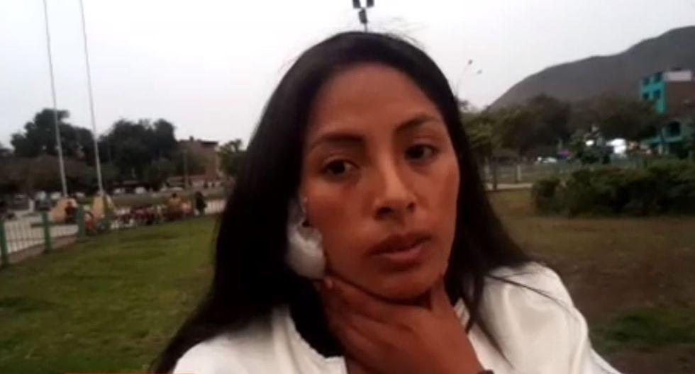 Mujer casi le arranca la oreja a rival con la boca en brutal pelea en el Agustino. (Captura RTV)