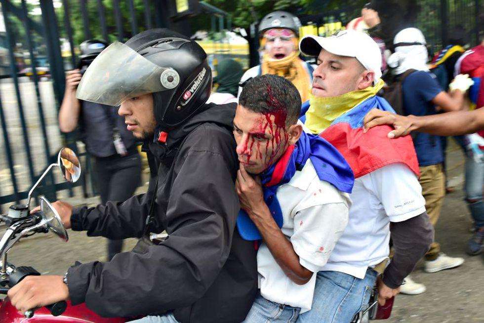 La crisis política, económica, social y humanitaria que vive Venezuela la ubica como la más violenta de Sudamérica. (Foto: AFP)