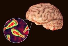 Ameba 'comecerebro': Cómo detectar esta peligrosa enfermedad [PODCAST]