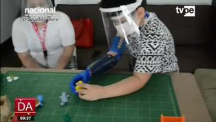 Ingeniero emprendedor crea el primer brazo biónico con codo articulado en el mundo