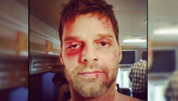 Maquillaje lo ayudó a verse así. (Instagram/Ricky Martin)