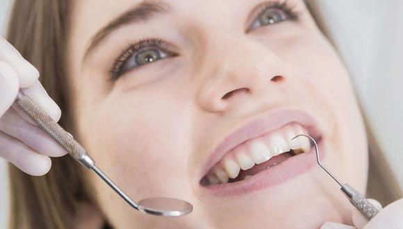 El 'blanco' en las piezas dentarias es propia de cada persona, así como lo es el tono de piel o cabello. (Foto: Difusión)