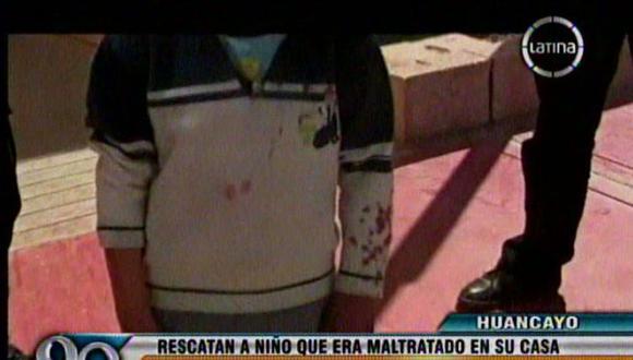 Niño estaba con la ropa manchada de sangre. (F. Latina)