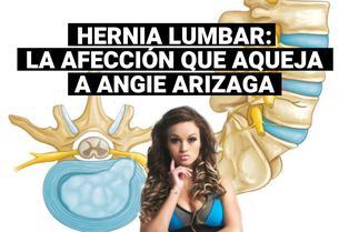 Angie Arizaga preocupada por hernias lumbares: ¿En qué consiste esta afección?