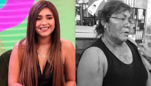 Gisella Villanueva, de 55 años, fue agredida por la expareja de Josimar, Gianella Ydoña. (COMPOSICIÓN)