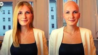 Mujer lucha contra estándares de belleza de la sociedad