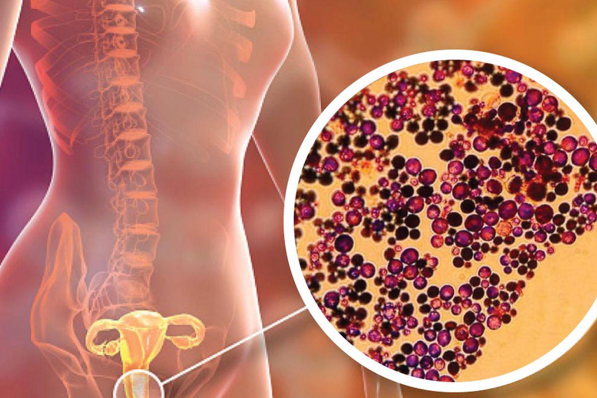¿Pueden los hombres tener infecciones por hongos en la boca?