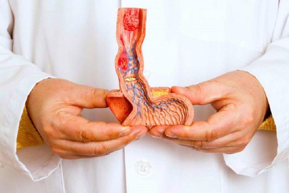 cáncer de próstata, testículo y pene (Liga de lucha contra el cáncer)